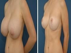 Plastic Surgery in Colombia - Breast Reduction
